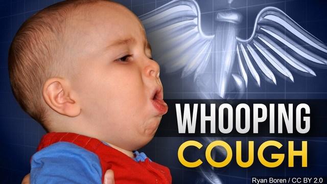 Whooping Cough_1554849271784.jpg-60106293.jpg